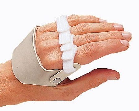 3pp Radial Hinged Ulnar Deviation Left Hand Splint