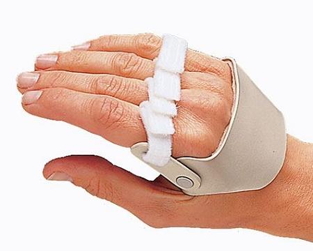 3pp Radial Hinged Ulnar Deviation Right Hand Splint